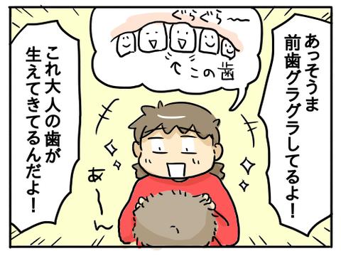 そうまの乳歯4