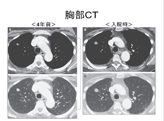 胸部CT png