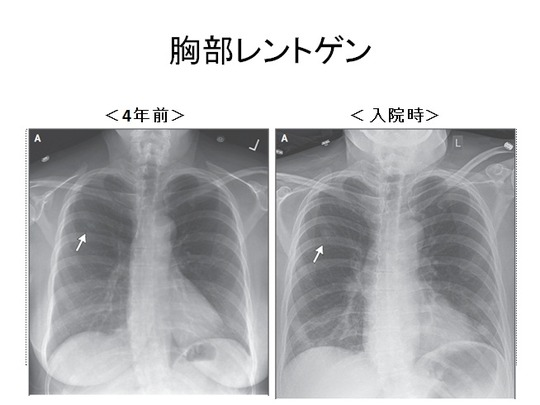 胸部レントゲン png