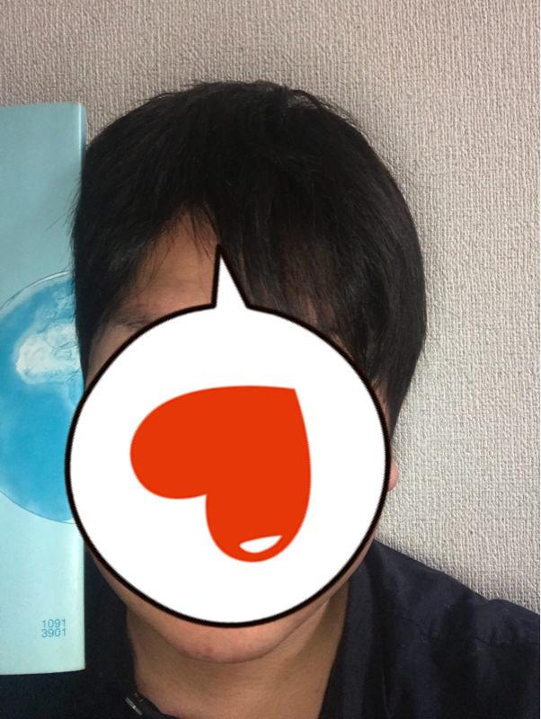【悲報】ワイ、顔がガチで26cmくらいある模様・・・