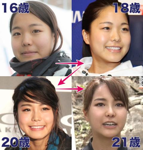 【悲報】高梨沙羅の顔の変化eeeeeeeeeeeeeeeeee