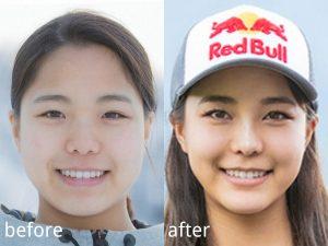 【炎上】高梨沙羅さん、施術した美容整形外科医に整形を暴露されるwwwwwwwww