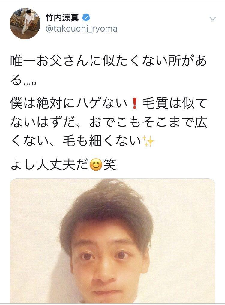 【悲報】人気若手イケメン俳優さん、禿げが進行してしまう