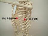 肋軟骨骨折