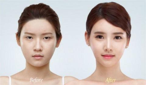 plastic-surgery-11