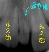 過剰歯のレントゲン1