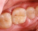 歯が真っ二つ
