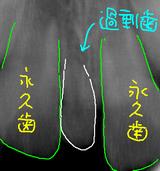 過剰歯のレントゲン2