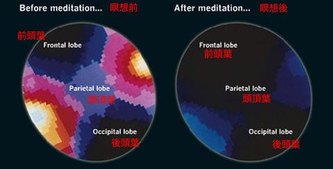 130904brain_meditate_02