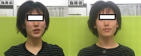テレワークやオンライン授業や飲み会で、お顔のむくみやゆがみ気になってませんか?津山市の作楽整体院の小顔施術でスッキリフェイス取り戻してくださいね♪