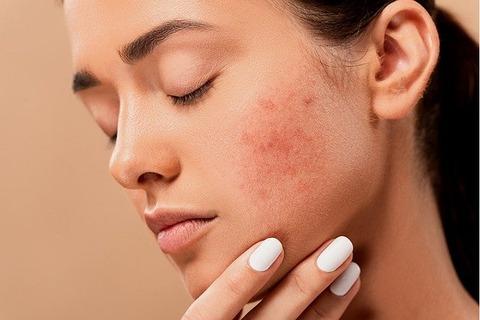 acne-5561750_640