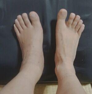 事故後150日の足