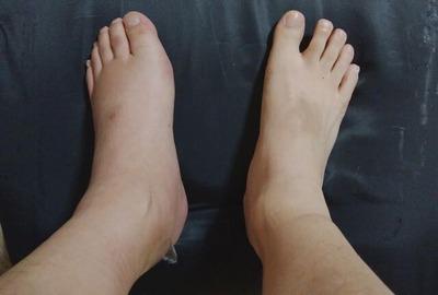 事故後75日の足
