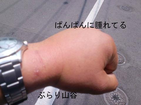 ダニに噛まれ腕が腫れる