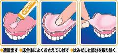 入れ歯接着剤