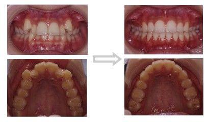 八重歯の矯正治療(ささき矯正歯科)