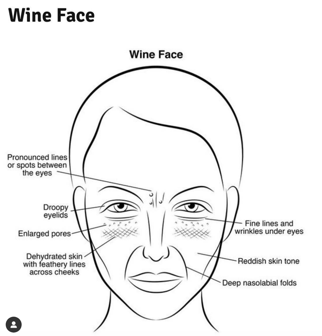 wine-and-aging-how-to-avoid-it