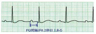 心電図波形の成り立ちを覚えよう!③PQ時間 : 心電図の部屋