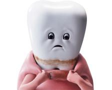 歯を磨け 歯周病は「2型糖尿病・動脈硬化・早産」のどれと関係がある?←全部
