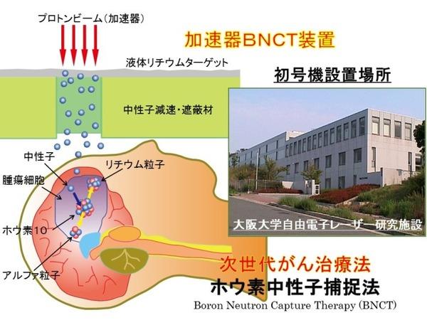 BNCTの原理-710x532