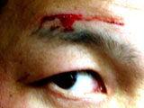 20120320_blood_01