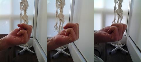 ばね指の治療