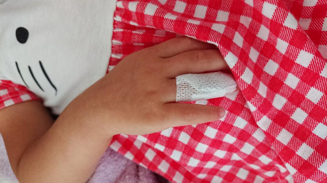 指の怪我 (1)