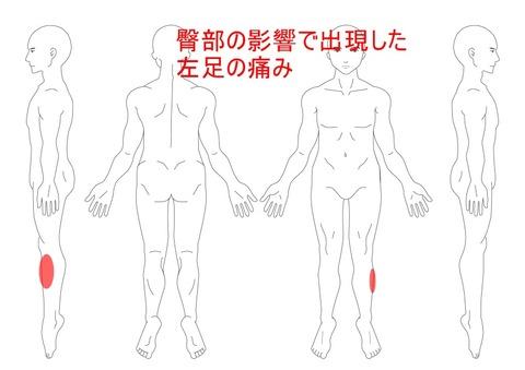臀部の影響で出現した左足の痛み