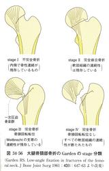 (図2)大腿骨頸部骨折のGardenのStage分類