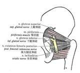 最もしばしば遭遇する坐骨神経の梨状筋貫通様式の変異