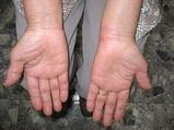 左手関節尺側に腫脹を認める