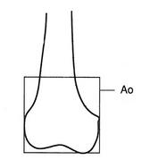 AO分類による遠位端部