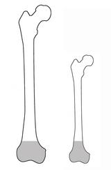 骨端からの長さが決まっている場合
