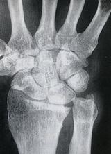 尺骨突き上げ症候群(前後像)