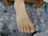 MP関節(第2〜5足指)背側を中心に皮下溢血が見られます。