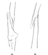上腕骨骨幹部に起こる螺旋状骨折