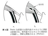 股関節の肢位と梨状筋との関係