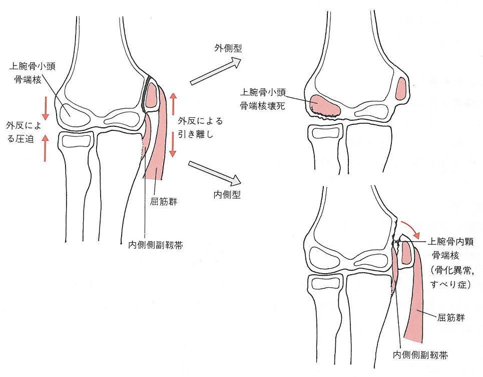 【図解】腕の骨の名前を徹底まとめ!関節や痛みの原因も