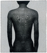モアレトポグラフィーで映し出された背部の等高線表示