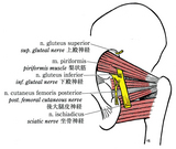 しばしば遭遇する坐骨神経の梨状筋貫通様式の変異