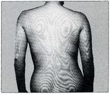 背部の起伏に差異があると等高線表示は左右非対称となる