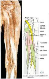 大腿後面を通る坐骨神経