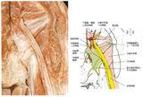 梨状筋の下から出てくる坐骨神経
