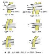 坐骨神経と梨状筋との関係(Beaton)