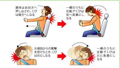 頚椎捻挫  に対する画像結果