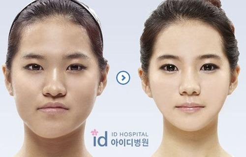korean_plastic_surgery_17