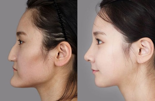 korean_plastic_surgery_21