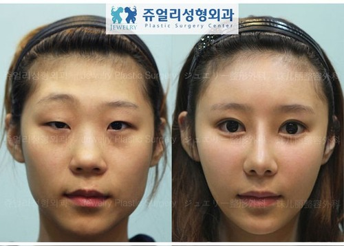 korean_plastic_surgery_48