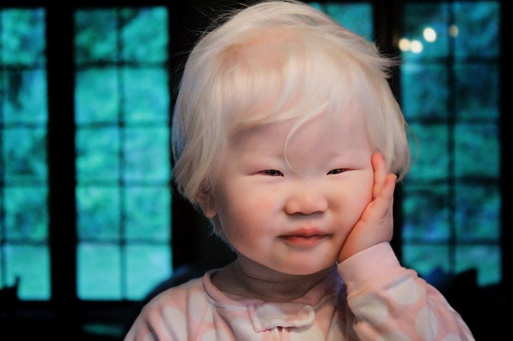 「モンゴロイド遺伝子の呪い」 韓国人「金髪の東洋系アルビノの画像をご覧下さい」 【画像】 世界の憂鬱 海外・韓国の反応