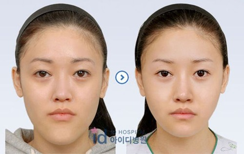 korean_plastic_surgery_47